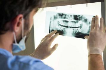 Dentist examining x-ray